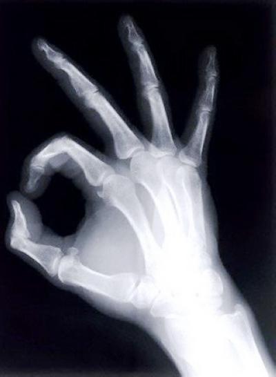 希龙牌,医院用防水磨砂激光彩色打印胶片